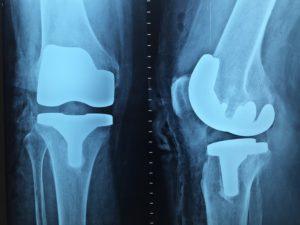 Få hurtigt tid til en røntgenundersøgelse
